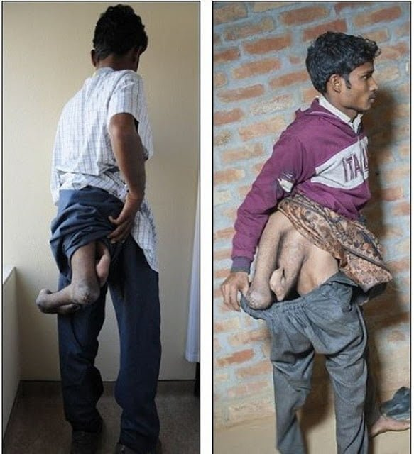 SHOCKING: SEE THE PHOTOS OF A MAN BORN WITH FOUR LEGS..
