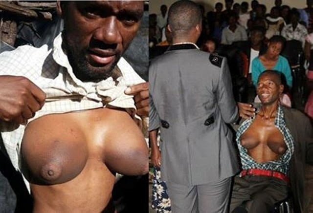 Man develops breasts after receiving threats from employee's husband