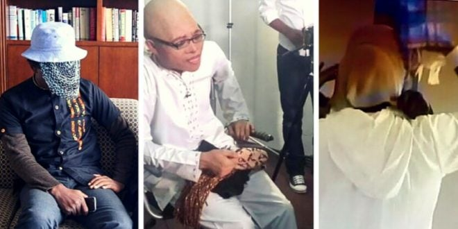 Busted: How Anas Aremeyaw Anas Transforms Into Albino Goes Viral (WATCH VIDEO)