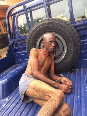 Nigerian kidnapping suspect was wrongly accused and beaten – Police